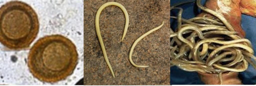 parasitter i tarmen